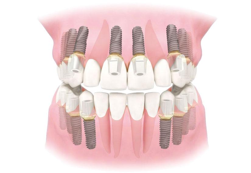 cay-ghep-implant-o-dau-tot-tai-ha-noi-phuc-hinh-mao-rang